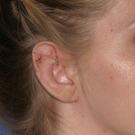 Otoplasty-ear-surgery_t?1331022644