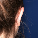 Otoplasty-ear-surgery_t?1331022663
