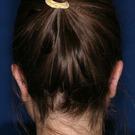 Otoplasty-ear-surgery_t?1331022668
