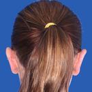 Otoplasty-ear-surgery_t?1331022678