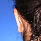 Otoplasty-ear-surgery_t?1331022689