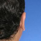 Otoplasty-ear-surgery_t?1331022711