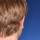 Otoplasty-ear-surgery_t?1331022729