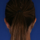 Otoplasty-ear-surgery_t?1331022747