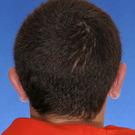 Otoplasty-ear-surgery_t?1331022788