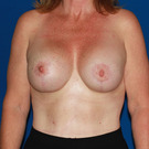 Breast-augmentation-repeat_t?1339454357