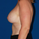 Breast-augmentation-repeat_t?1339454383