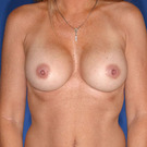 Breast-augmentation-repeat_t?1331024233