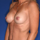Breast-augmentation-repeat_t?1331024248