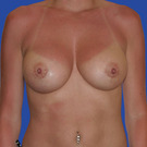 Breast-augmentation-repeat_t?1331024266