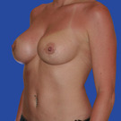 Breast-augmentation-repeat_t?1331024272