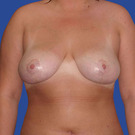 Breast-reduction_t?1331024346