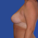 Breast-reduction_t?1331024351