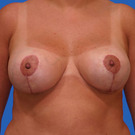 Breast-reduction_t?1331024356