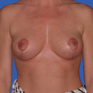 Breast-reduction_t?1331024368