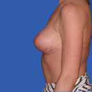 Breast-reduction_t?1331024374