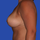 Breast-reduction_t?1331024386