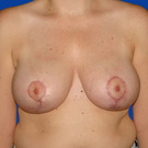 Breast-reduction_t?1331024392