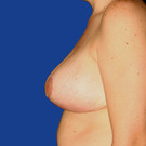 Breast-reduction_t?1331024398