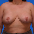Breast-reduction_t?1331024406