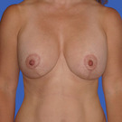 Breast-reduction_t?1331024417