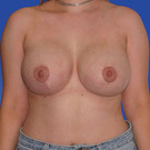 Breast-reduction_t?1331024428