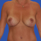 Breast-reduction_t?1331024441