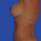 Breast-reduction_t?1331024451