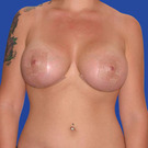 Breast-reduction_t?1331024457
