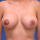 Breast-reduction_t?1331024480