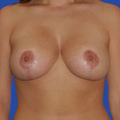 Breast-reduction_t?1331024512
