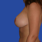Breast-reduction_t?1331024519