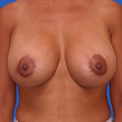 Breast-lift_t?1331024657