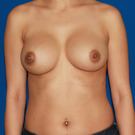 Breast-augmentation-repeat_t?1335994204