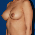 Breast-augmentation-repeat_t?1335994207