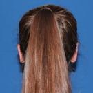Otoplasty-ear-surgery_t?1344103911