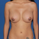 Breast-augmentation_t?1344105244