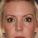 Eyelid-surgery-upper_t?1344449317