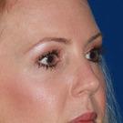 Eyelid-surgery-upper_t?1344382116
