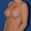 Breast-augmentation-repeat_t?1349811280