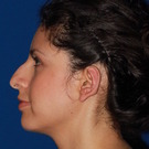Otoplasty-ear-surgery_t?1349987588