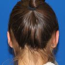 Otoplasty-ear-surgery_t?1350078964