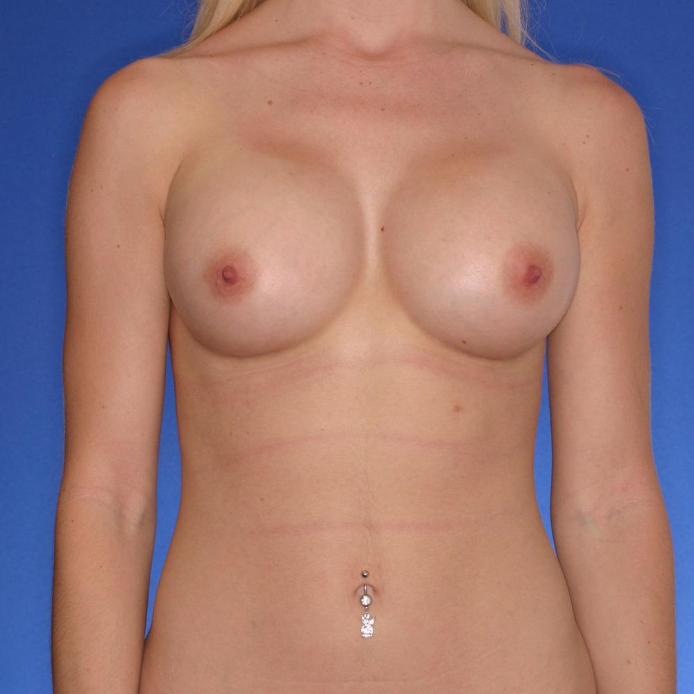 Breast-augmentation_o?1350944888