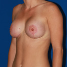 Breast-lift_t?1351545444