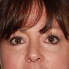 Eyelid-surgery-lower_t?1370980249