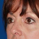 Eyelid-surgery-lower_t?1370980427