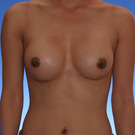Breast-augmentation_t?1352840238