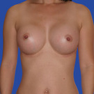 Breast-augmentation_t?1352867518