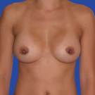 Breast-augmentation_t?1352868432