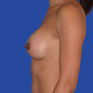 Breast-augmentation_t?1352868436